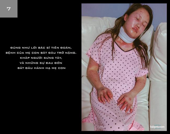 Ông bố chụp bộ ảnh Ba kể con nghe: Bệnh Lupus làm vợ tôi già đi, tóc rụng, và tôi vẫn yêu cô ấy - Ảnh 1.