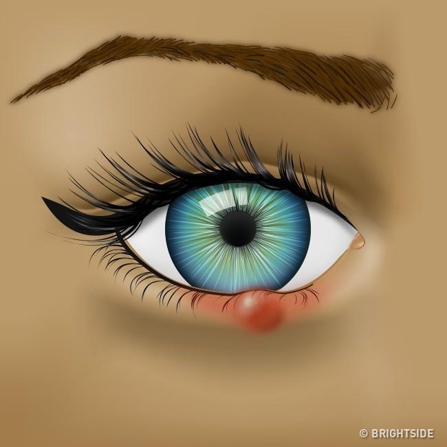 Mắt có các biểu hiện này thì nên đi khám sức khỏe ngay! - Ảnh 1.