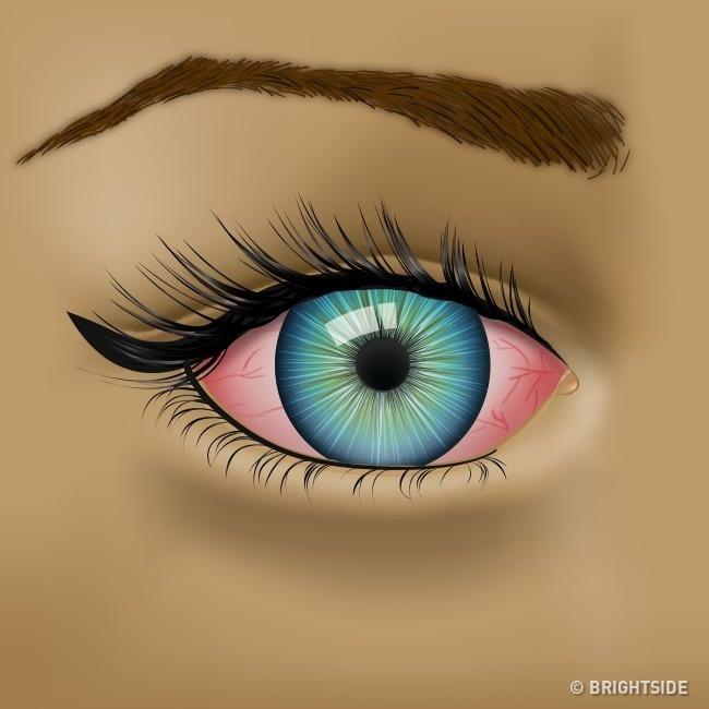 Mắt có các biểu hiện này thì nên đi khám sức khỏe ngay! - Ảnh 3.
