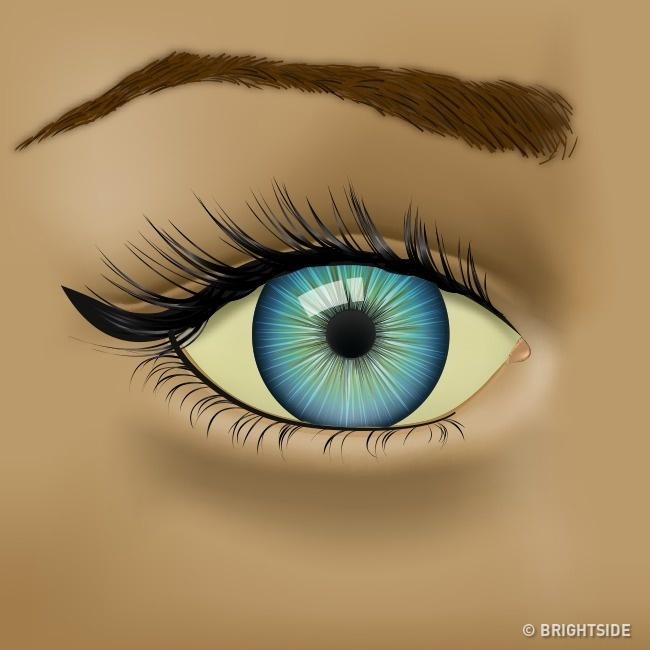 Mắt có các biểu hiện này thì nên đi khám sức khỏe ngay! - Ảnh 4.