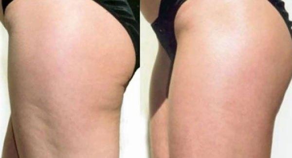 Đánh tan mỡ bằng phương pháp massage với giấm táo - Ảnh 5.