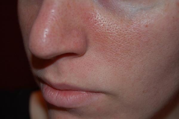 Nguyên nhân và cách xử lý lỗ chân lông to chỉ trong 2 bước