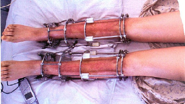 """Lý do bạn cần cân nhắc thật kỹ trước khi quyết định thực hiện phẫu thuật """"kéo dài chân"""""""