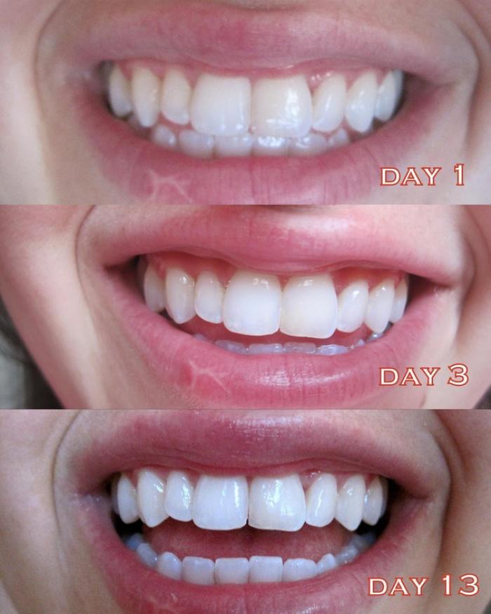 3 sản phẩm làm trắng răng rất tiện dụng bạn nên thử ngay tại nhà