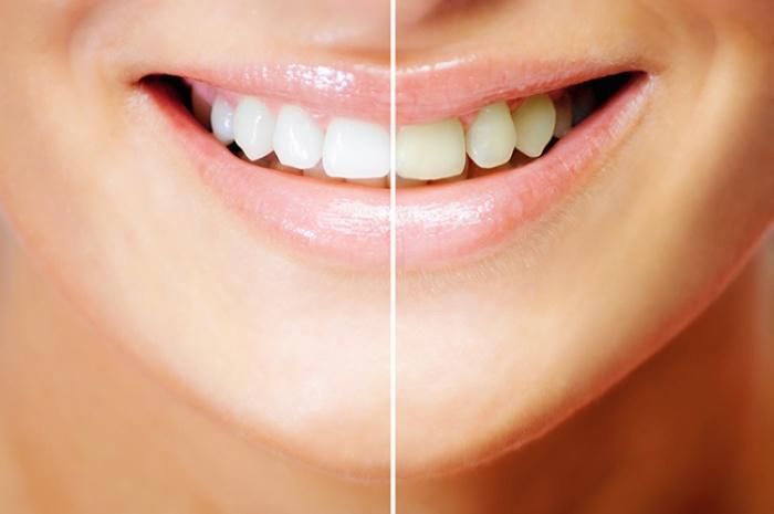 3 sản phẩm làm trắng răng rất tiện dụng bạn nên thử ngay tại nhà - Ảnh 9.