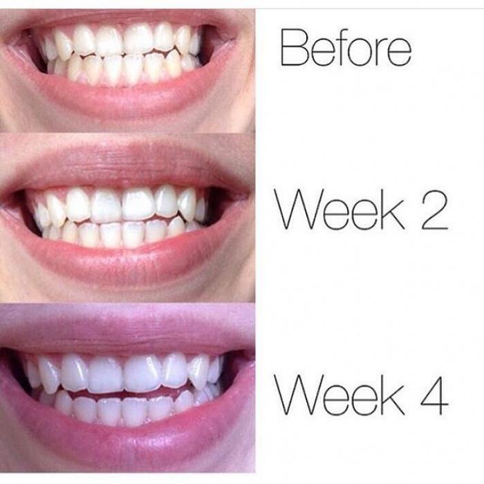 3 sản phẩm làm trắng răng rất tiện dụng bạn nên thử ngay tại nhà - Ảnh 10.