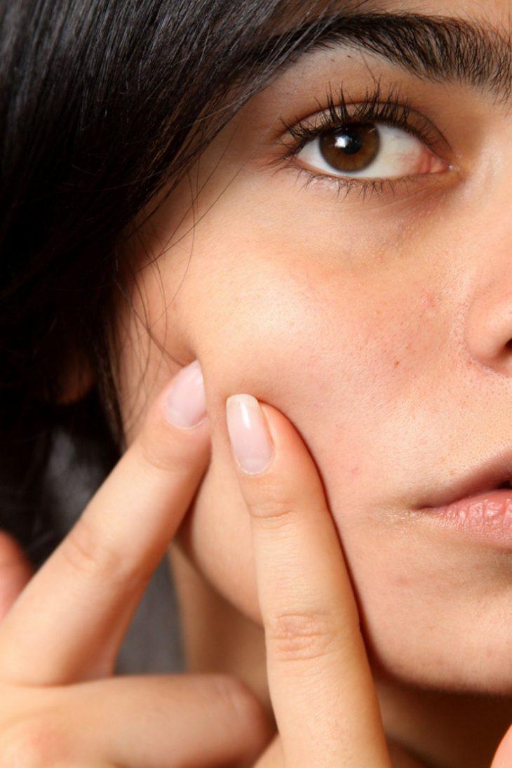 Liệu kem dưỡng ẩm có phải là bạn thân của làn da?Không lấy tay nặn mụn khi da xuất hiện mụn đỏ