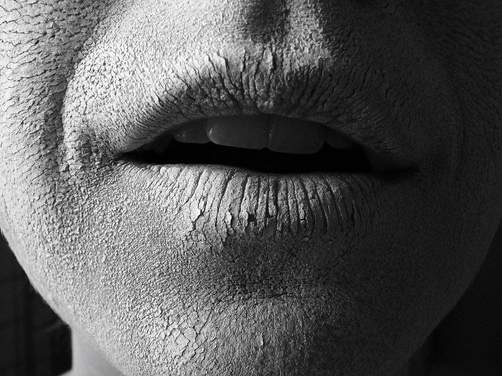 Liệu kem dưỡng ẩm có phải là bạn thân của làn da?Da khô do kem dưỡng ẩm không phù hợp