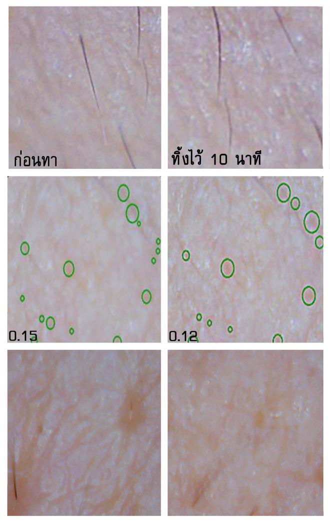 Soi đến tận chân tơ xem hiệu quả của 8 sản phẩm chống lão hóa phổ biến hiện nay - Ảnh 12.