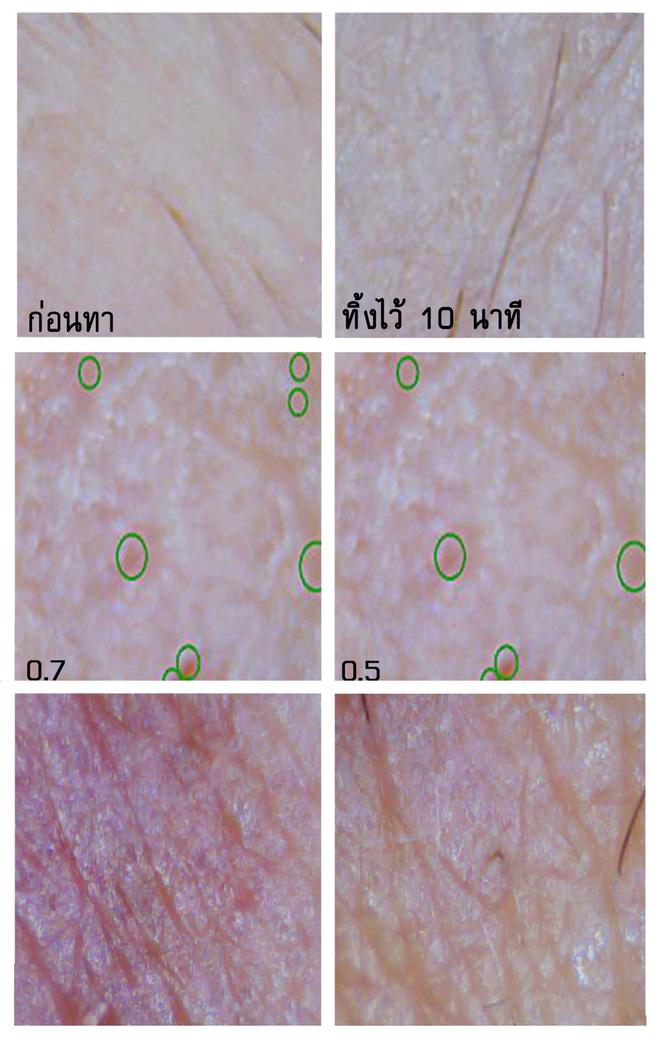 Soi đến tận chân tơ xem hiệu quả của 8 sản phẩm chống lão hóa phổ biến hiện nay - Ảnh 4.