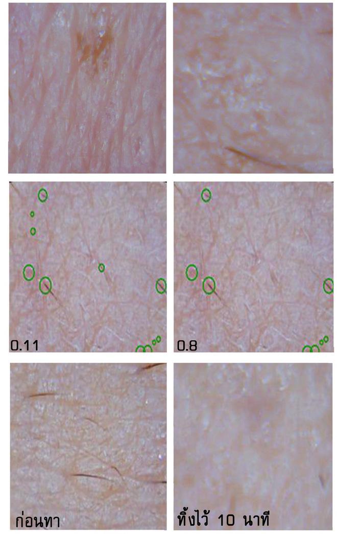Soi đến tận chân tơ xem hiệu quả của 8 sản phẩm chống lão hóa phổ biến hiện nay - Ảnh 10.