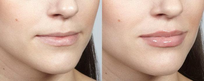 """4 phương pháp siêu hot giúp bạn có ngay đôi môi """"tều"""" gấp đôi bình thường"""
