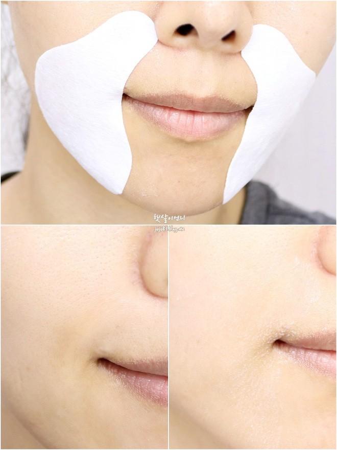 5 loại mặt nạ có tác dụng cải thiện rõ rệt vùng quầng thâm dưới mắt - Ảnh 6.
