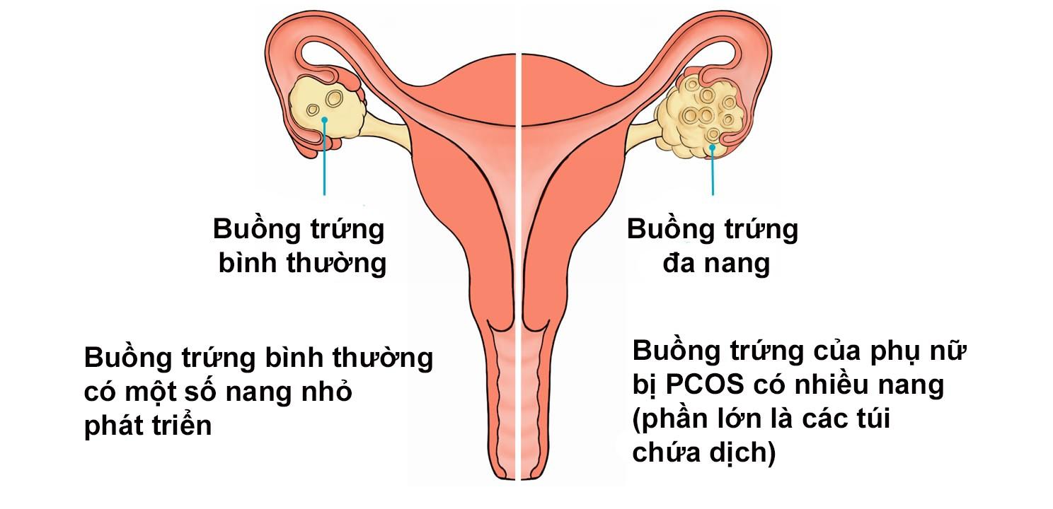 U nang buồng trứng - căn bệnh âm thầm diễn ra bên trong cơ thể ở lứa tuổi dậy thì - Ảnh 1.