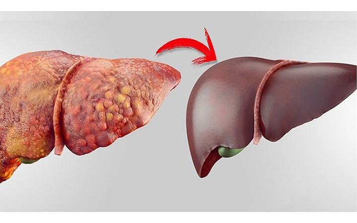 Nước ép mướp đắng cực tốt cho người bệnh tiểu đường và muốn giảm cân - Ảnh 4.