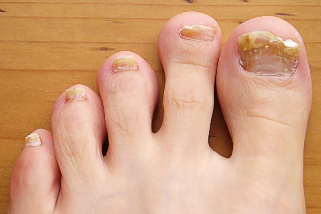 Bàn chân có 5 dấu hiệu này thì đừng chủ quan mà nên đi khám ngay - Ảnh 4.