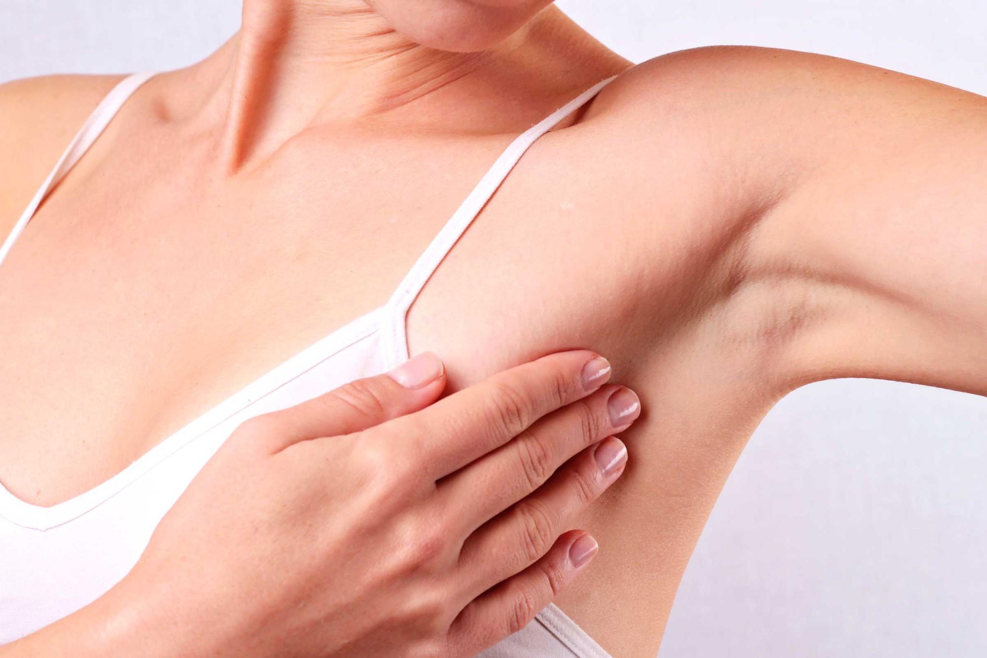 5 dấu hiệu nhận biết bệnh ung thư vú mà con gái không nên chủ quan xem thường - Ảnh 4.