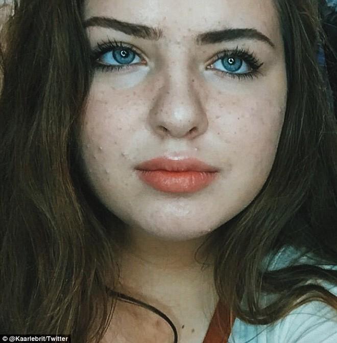 """Cô gái này đã """"chiến đấu"""" với mụn nhờ vào chu trình dưỡng da chỉ có 5 bước cơ bản - Ảnh 1."""