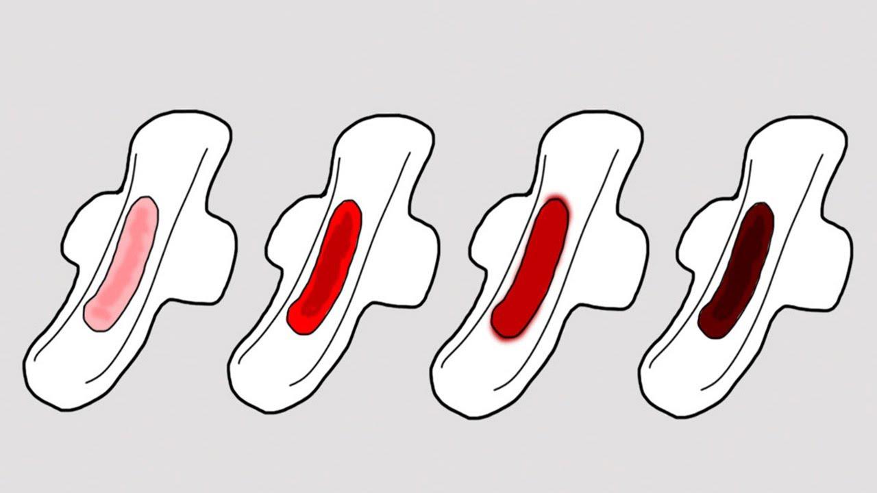 5 dấu hiệu bất thường của chu kỳ kinh nguyệt mà bạn nên lưu ý và đi khám ngay - Ảnh 2.