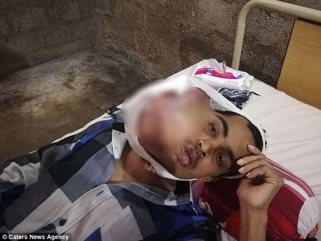 Pakistan: Chàng trai 21 tuổi mắc bệnh ung thư miệng sau khi đi nhổ răng khôn giá rẻ ở phòng khám kém uy tín - Ảnh 1.