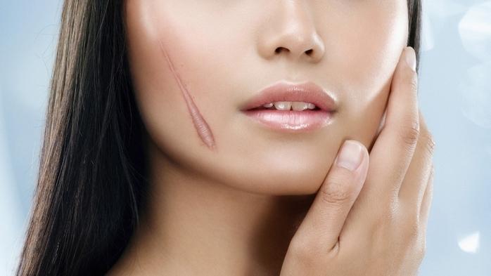 Trị sẹo lồi lâu năm khó chữa với nguyên liệu tự nhiên, rẻ tiền