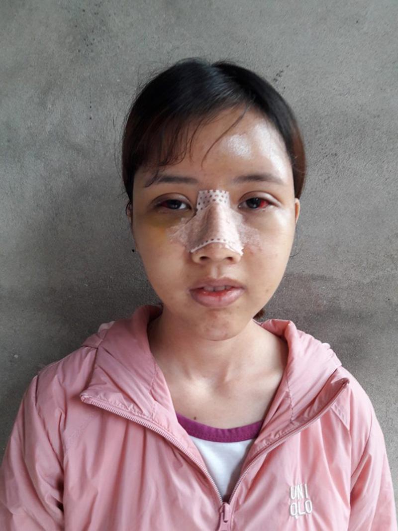 Trải qua nhiều đau đớn về thể xác, hiện tại, Oanh không phải kiêng cử gì trong sinh hoạt với khuôn mặt mới.