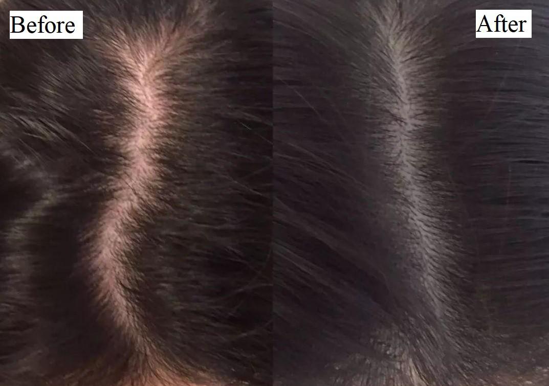 Cư dân mạng kháo nhau dùng tinh dầu bưởi trị rụng tóc, nhưng liệu nó có thực sự thần thánh đến vậy? - Ảnh 4.