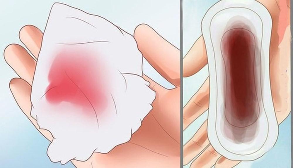 Tình trạng rối loạn kinh nguyệt có nguy cơ cao dẫn đến vô sinh và đây là những dấu hiệu nhận biết mà bạn cần nắm rõ - Ảnh 7.