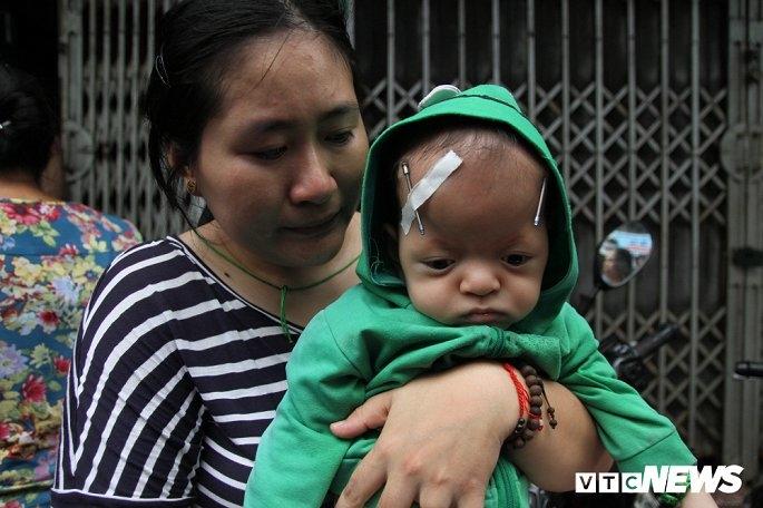 Chị Lộc bế đứa con bị hội chứng Apert trên tay.