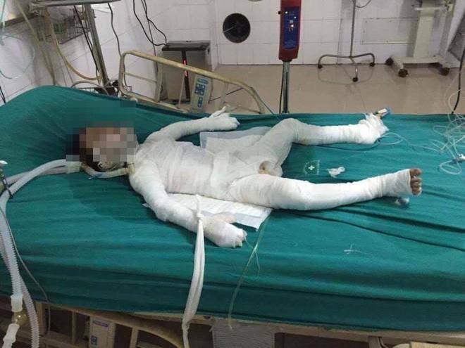 Hà Nội: Cháu bé 6 tuổi bị bố dượng nhốt trong nhà, tẩm xăng đốt đang trong tình trạng nguy kịch - Ảnh 1.