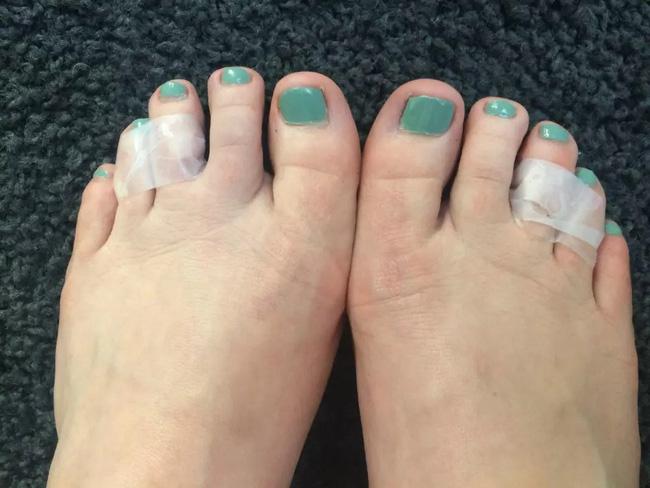 Để giảm đau chân khi đi giày cao gót, cô nàng này đã tìm ra tuyệt kỹ rẻ và hữu hiệu nhất nhờ thứ này - Ảnh 9.