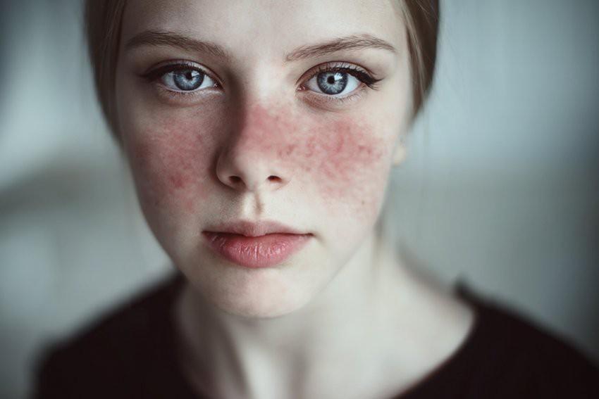 Cẩn thận với 6 căn bệnh phổ biến dễ xảy ra với các bạn gái ở độ tuổi 20 - Ảnh 1.