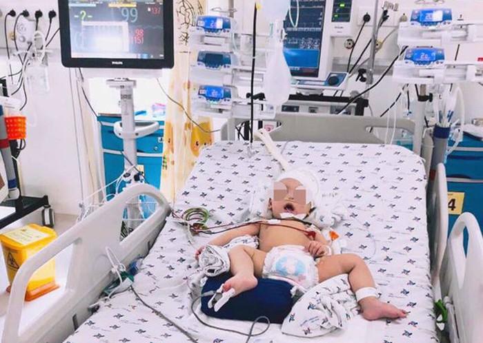 Bé 8 tháng xuất huyết não sau khi đột ngột lên cơn co giật