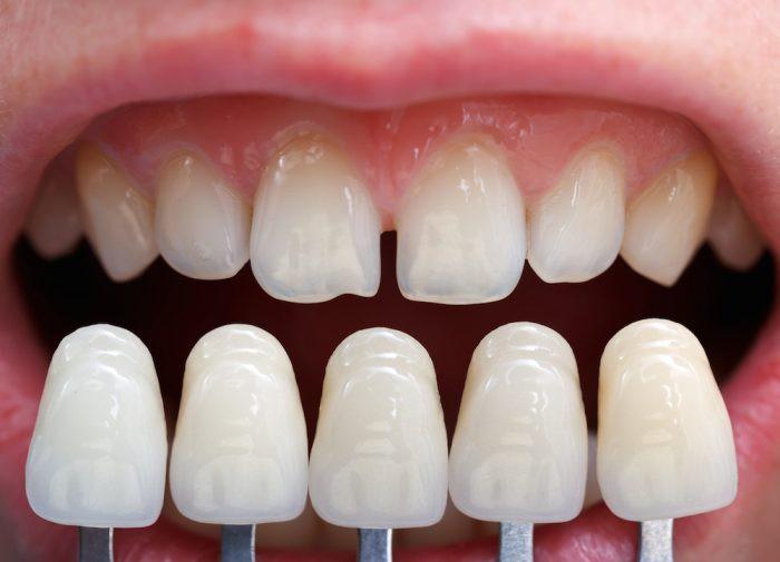 5 triệu chứng bất thường ở răng miệng cảnh báo nhiều vấn đề nguy hại mà bạn không nên chủ quan bỏ qua - Ảnh 2.