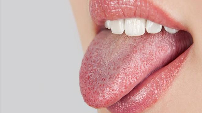 5 triệu chứng bất thường ở răng miệng cảnh báo nhiều vấn đề nguy hại mà bạn không nên chủ quan bỏ qua - Ảnh 3.