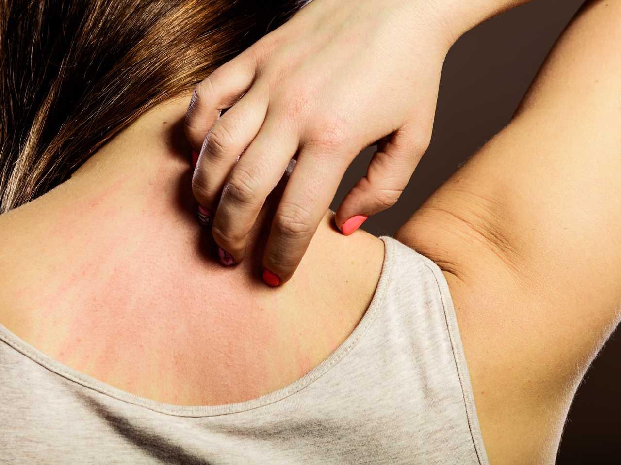 6 triệu chứng nhận biết làn da của bạn đang gặp vấn đề, cần quan tâm chăm sóc kỹ càng hơn - Ảnh 3.