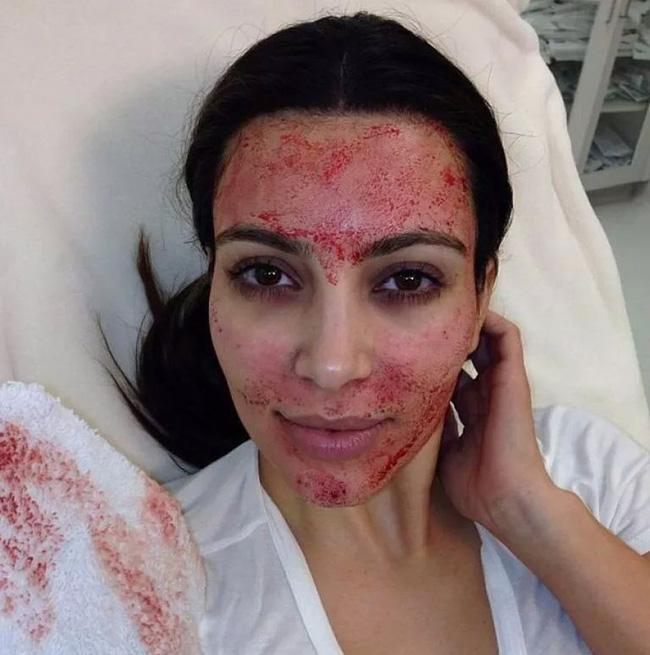 Sao và loạt cách thức ghê rợn để duy trì nhan sắc: bà Beck và Kim dưỡng da bằng máu của mình, Miranda Kerr cho đỉa bò lên mặt - Ảnh 3.