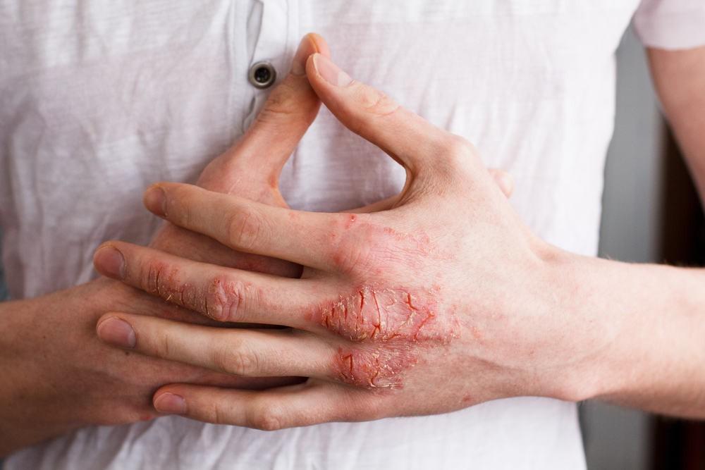 Thường xuyên bị ngứa ở vùng ngực có thể là do 5 nguyên nhân mà hội con gái chẳng bao giờ ngờ tới - Ảnh 2.