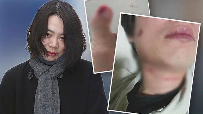 Đời tư bê bối của ái nữ tập đoàn hàng không Hàn Quốc: Xem người như cỏ rác, đến chồng con cũng bị đánh đập không thương tiếc - Ảnh 7.