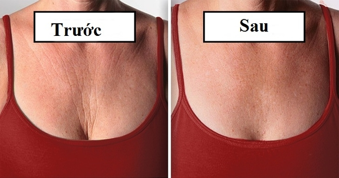 Những cách xóa nếp nhăn vùng ngực khiến chị em tự tin