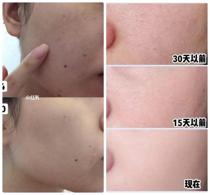 Phương pháp chườm nóng giúp da trẻ trung hơn mỗi ngày