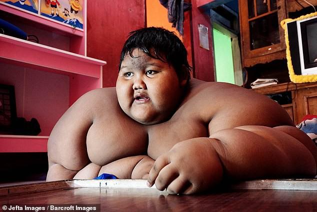 Giảm hơn một nửa trọng lượng cơ thể, cậu bé từng nặng nhất thế giới gây sốc với ngoại hình hiện tại - Ảnh 1.