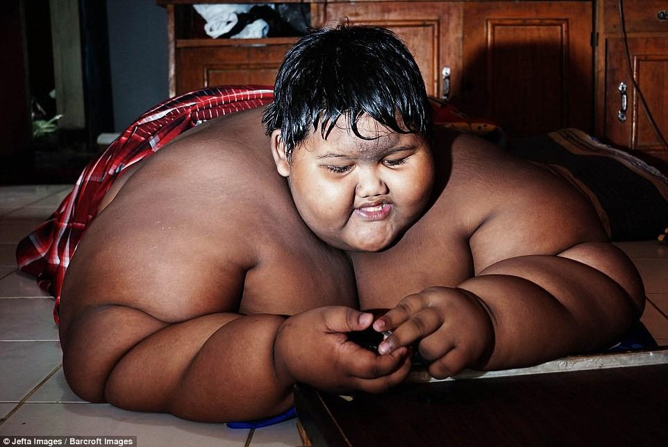 Giảm hơn một nửa trọng lượng cơ thể, cậu bé từng nặng nhất thế giới gây sốc với ngoại hình hiện tại - Ảnh 4.