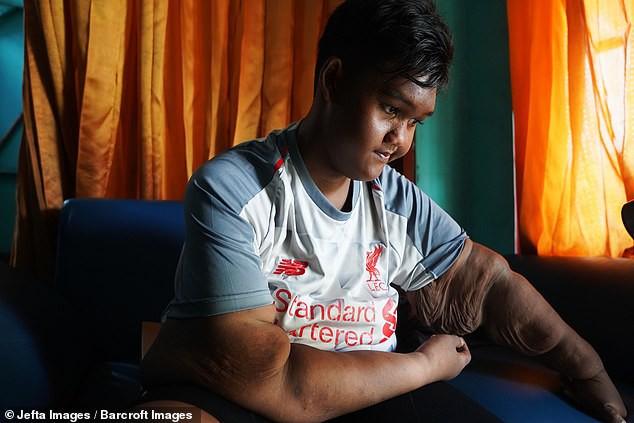 Giảm hơn một nửa trọng lượng cơ thể, cậu bé từng nặng nhất thế giới gây sốc với ngoại hình hiện tại - Ảnh 10.