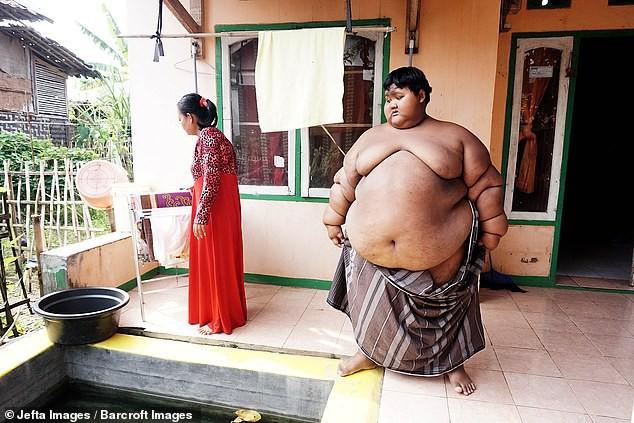 Giảm hơn một nửa trọng lượng cơ thể, cậu bé từng nặng nhất thế giới gây sốc với ngoại hình hiện tại - Ảnh 2.