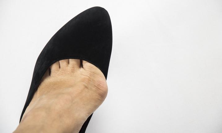 Nguy cơ từ giày cao gót 3
