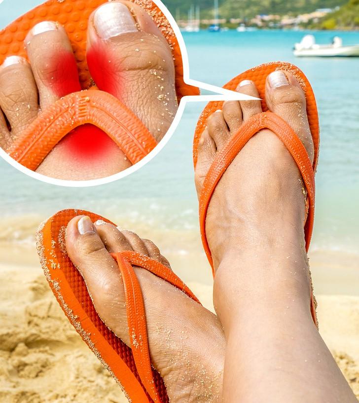 Nếu có thói quen đi dép xỏ ngón thường xuyên, bạn cần biết những tác hại không ngờ này để hạn chế dần - Ảnh 4.