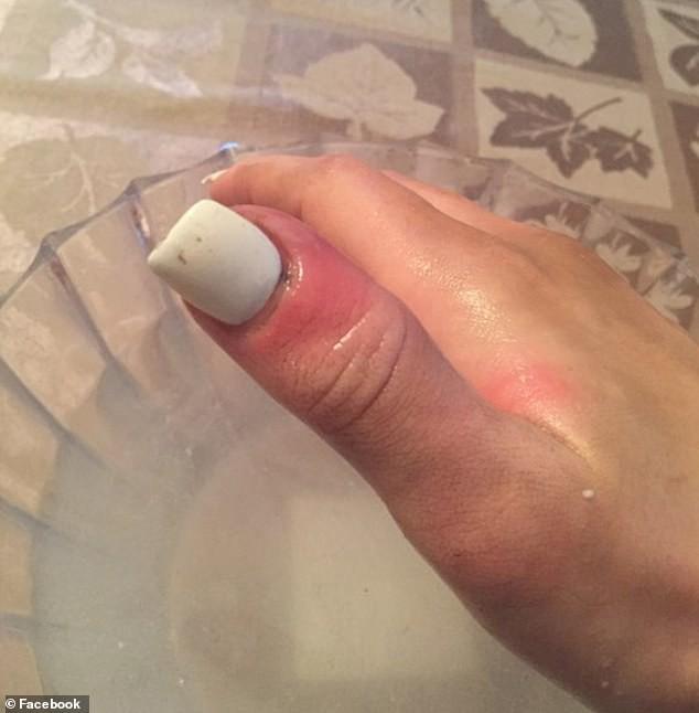 Cô gái 21 tuổi biết mình bị ung thư nhờ dấu hiệu nhỏ trên móng tay, nguyên nhân đến từ sở thích làm đẹp của rất nhiều con gái thời nay - Ảnh 2.