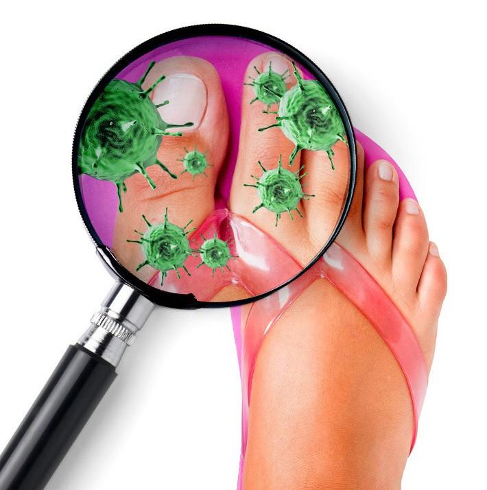 Nếu có thói quen đi dép xỏ ngón thường xuyên, bạn cần biết những tác hại không ngờ này để hạn chế dần - Ảnh 1.