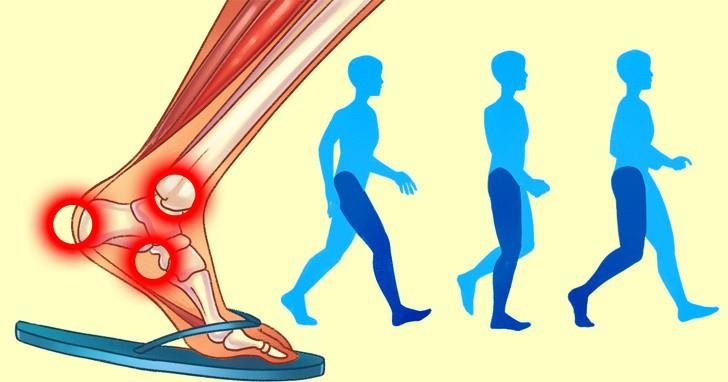 Nếu có thói quen đi dép xỏ ngón thường xuyên, bạn cần biết những tác hại không ngờ này để hạn chế dần - Ảnh 2.